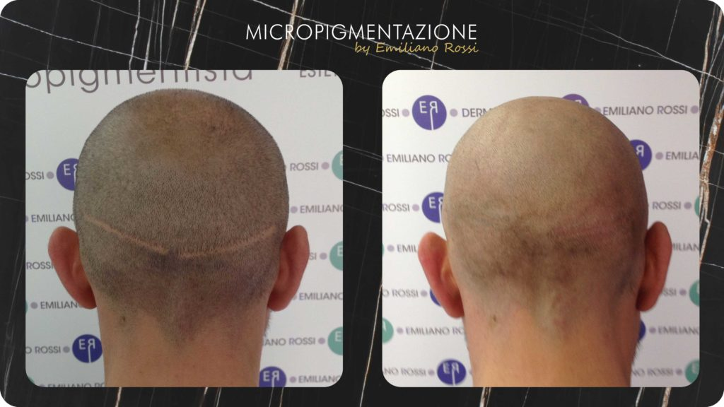 Copertura-cicatrice-Emiliano-Rossi-Micropigmentazione