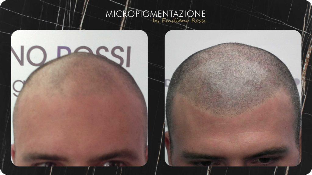 ER Micropigmentazione PORTFOLIO - effetto-rasato (Andrea)