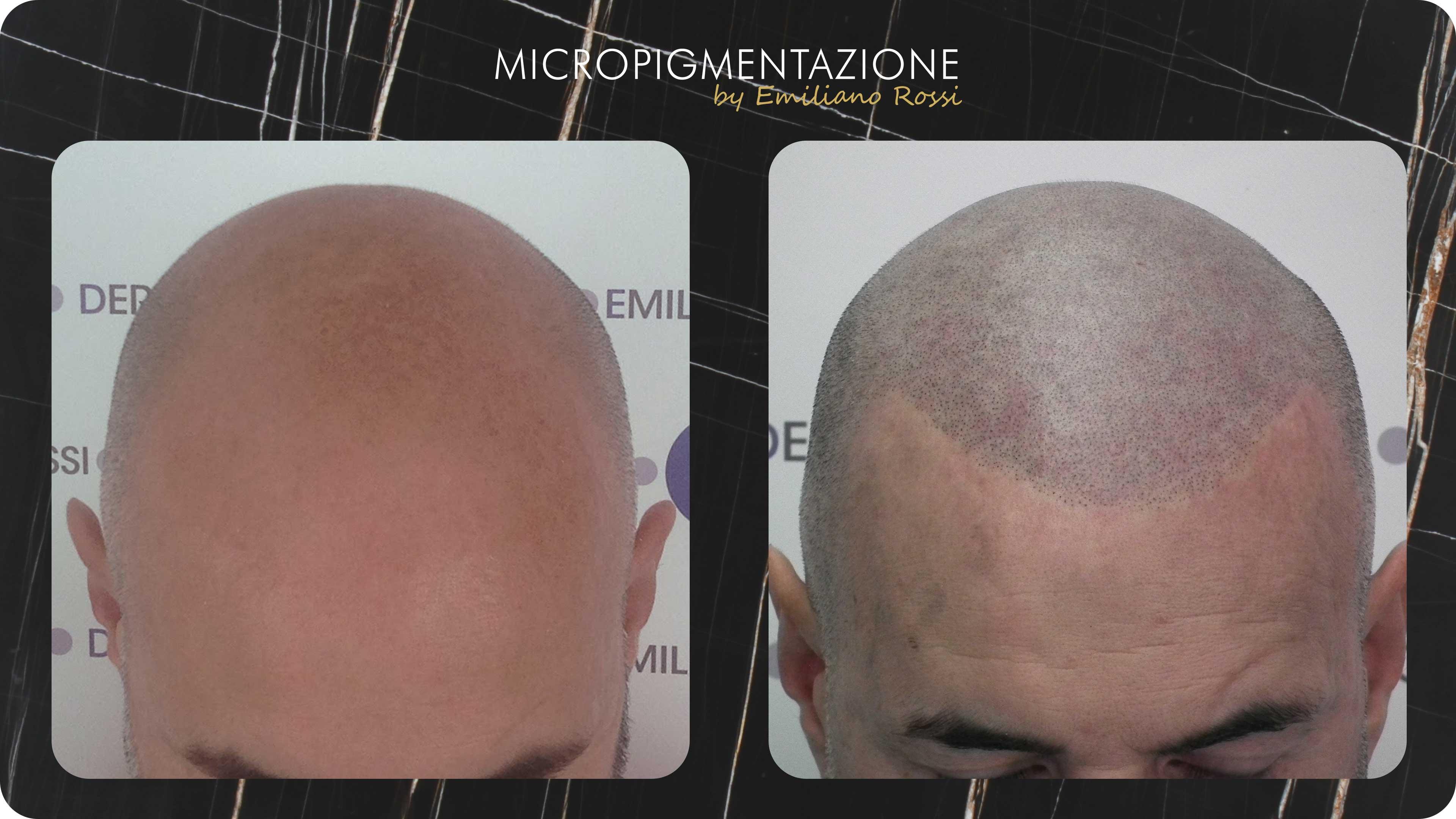 Effetto-Rasato-Emiliano-Rossi-Micropigmentazione-2