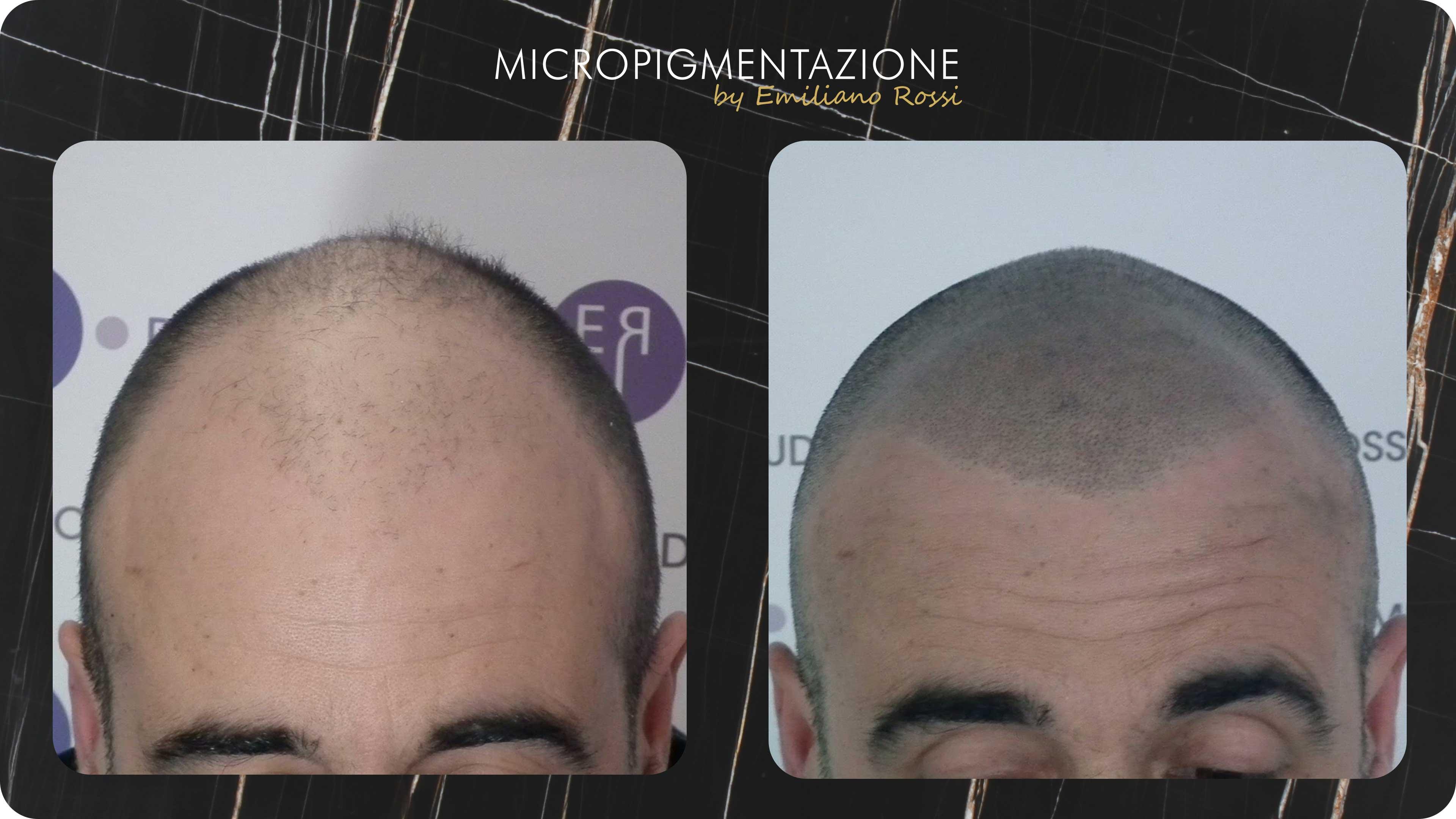 Effetto-Rasato-Emiliano-Rossi-Micropigmentazione