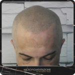 ER Micropigmentazione tricologica - Effetto rasato Matteo - foto singola