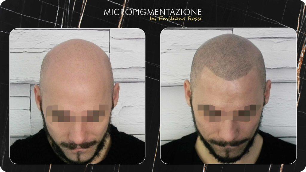 Calvizie e Alopecia - Effetto Rasato - Micropigmentazione Udine