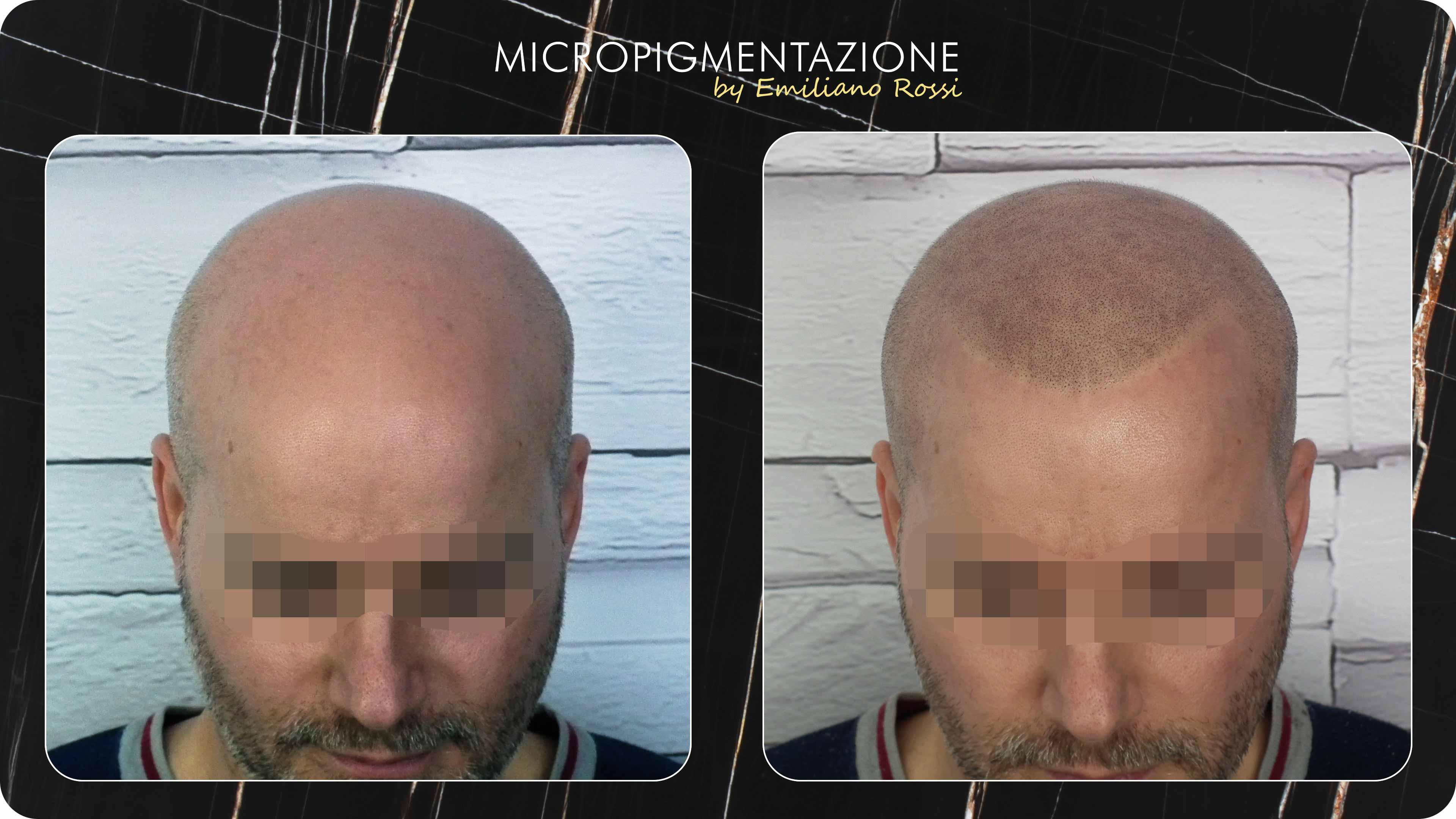 Micropigmentazione trattamento Massimo