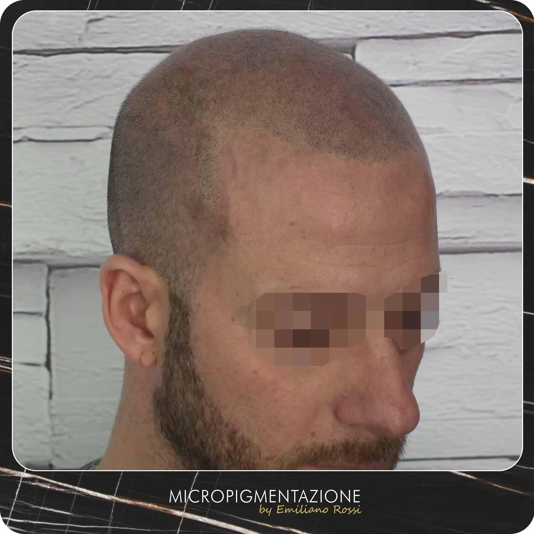 Micropigmentazione calvizie profilo