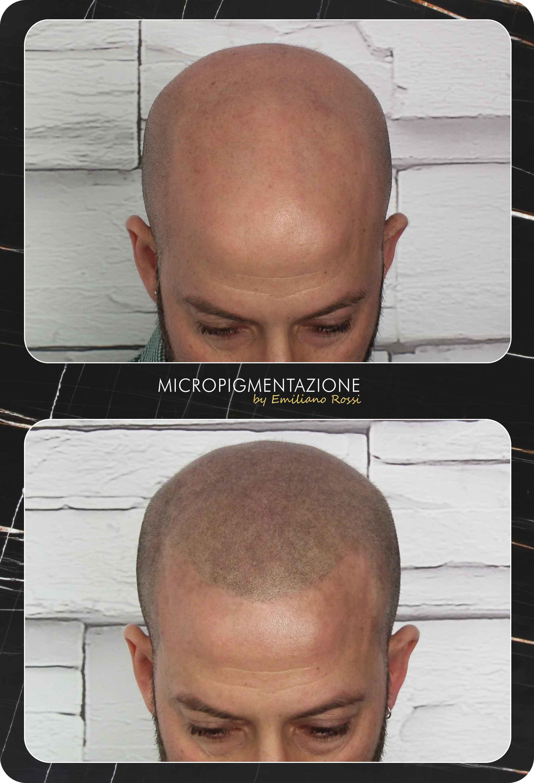 Micropigmentazione-calvizie-udine