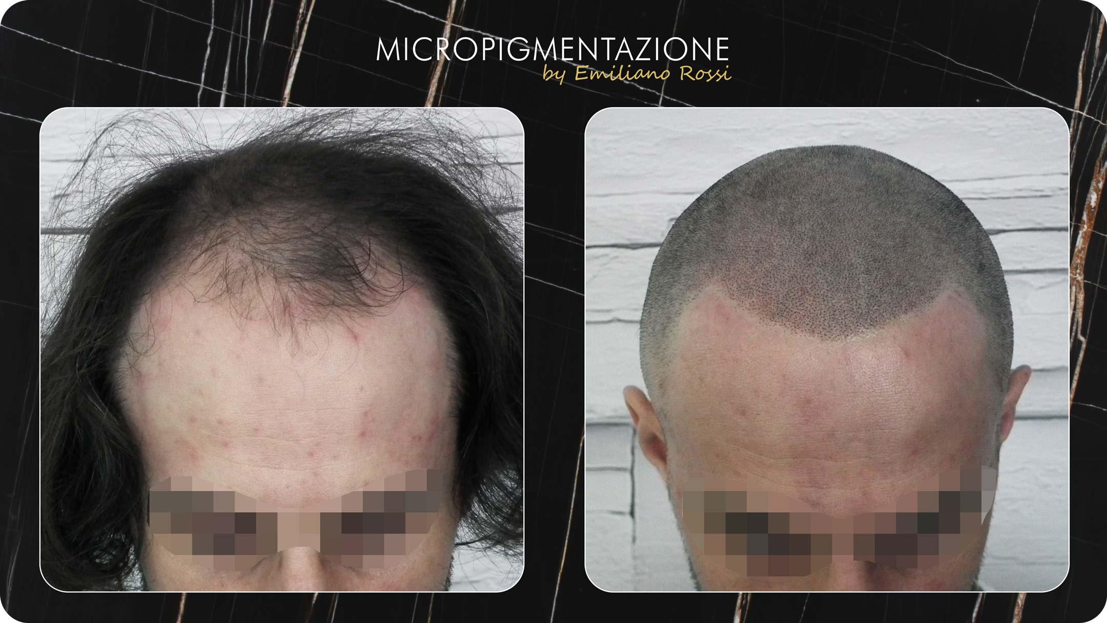 micropigmentazione-tricologica-calvizie-udine