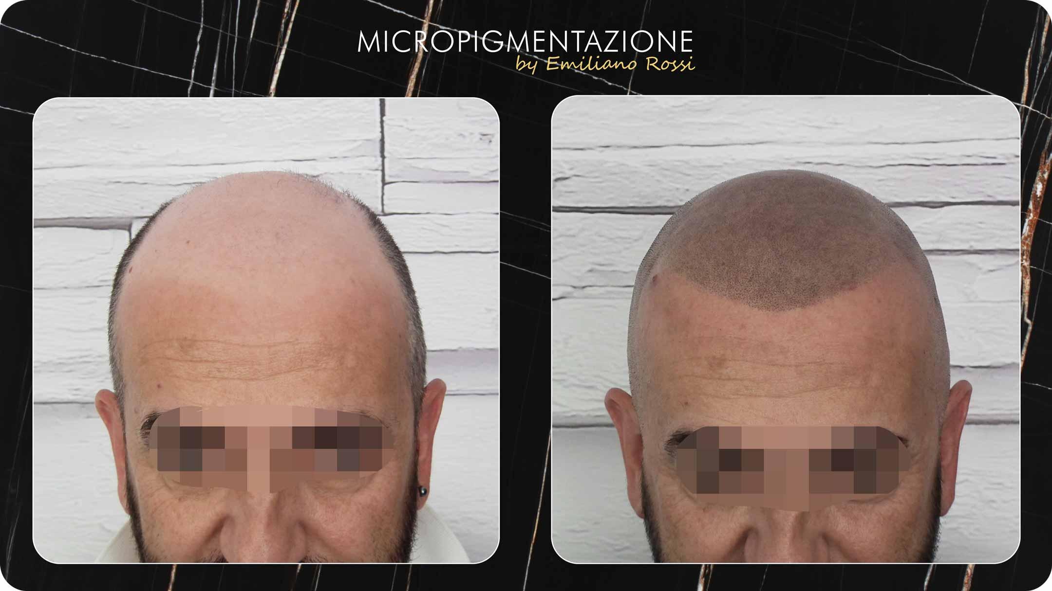 Emiliano-rossi-micropigmentazione-Portfolio-mauro-fronte