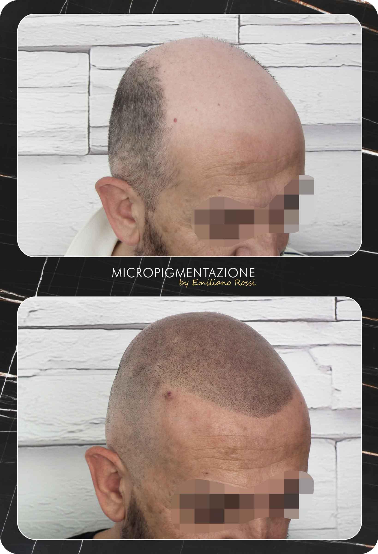 Emiliano-rossi-micropigmentazione-Portfolio-mauro-profilo